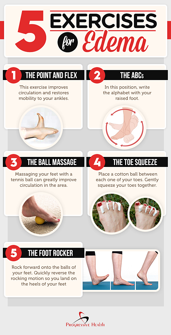 5 Exercises for Edema