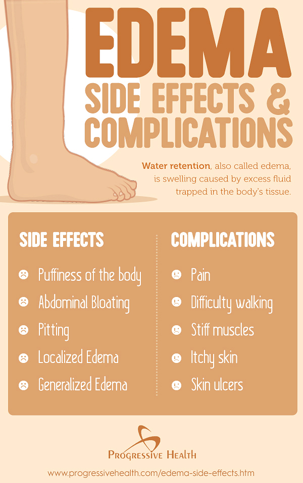 Edema_Side_Effects__Complications