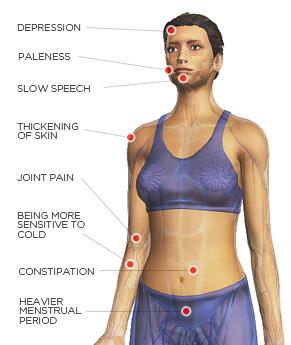 Hypothyroidism Sympot chart