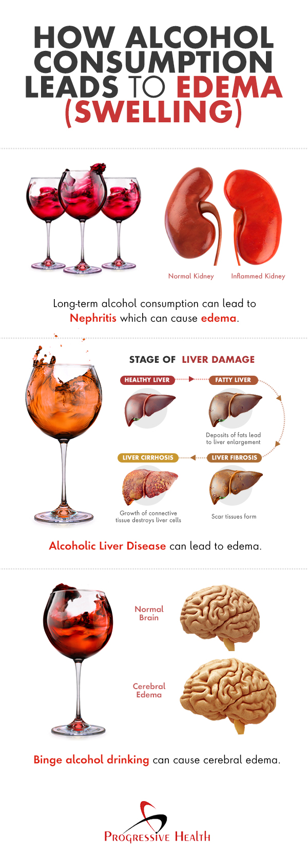 How Alcohol Consumption Leads to Edema (Swelling)