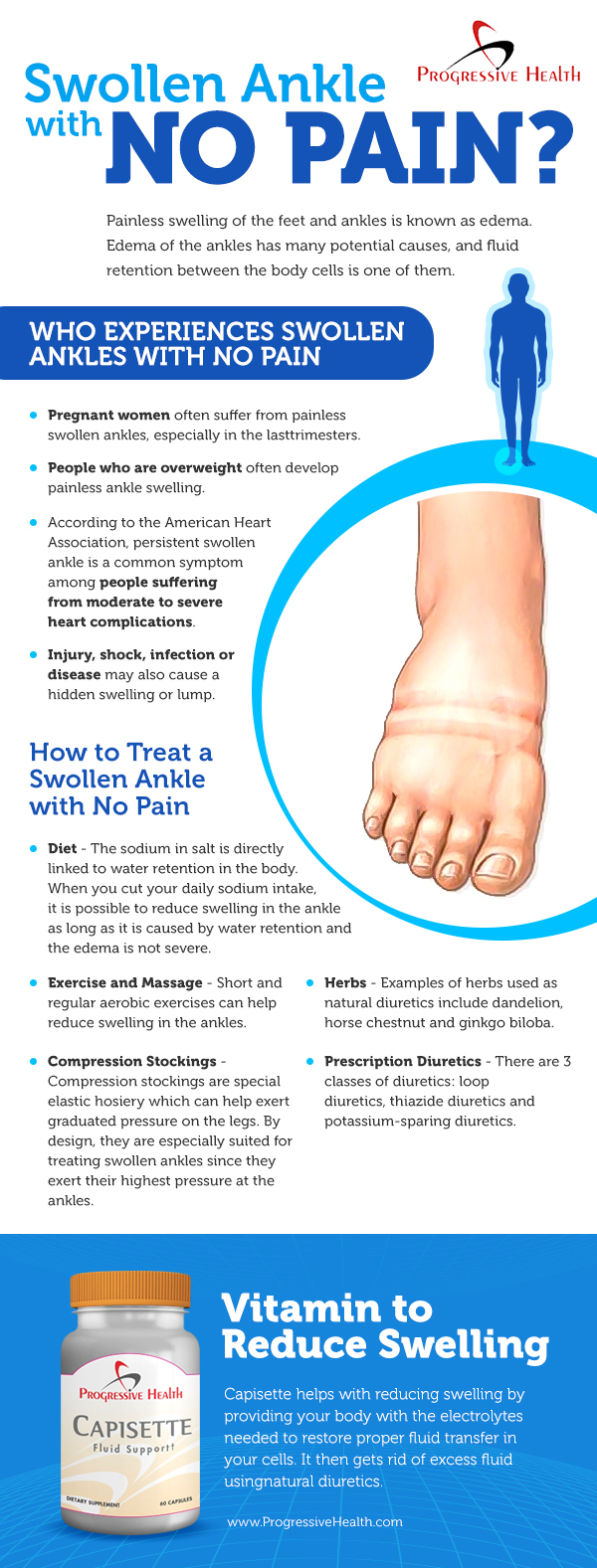 Swollen ankles with no pain