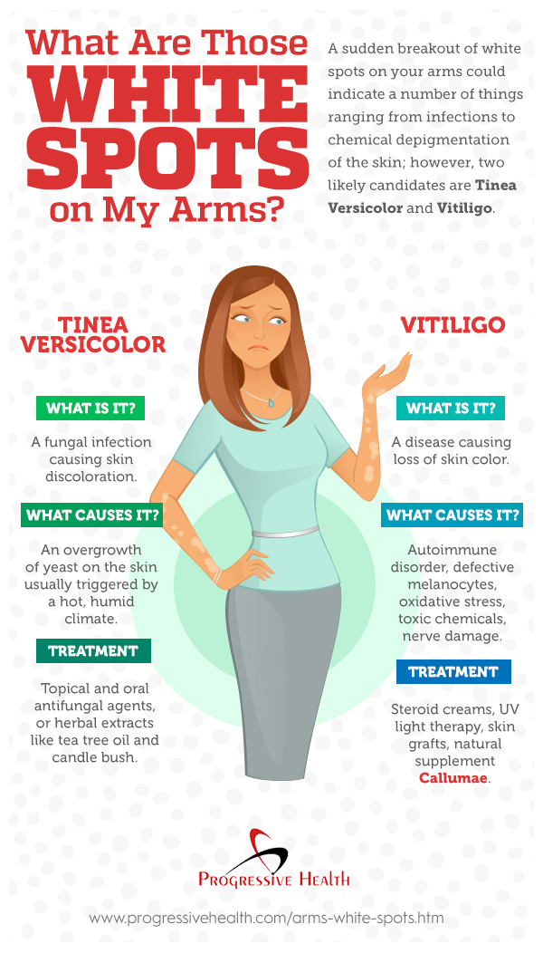 White Spots On Arms May Be Tinea Versicolor or Vitiligo