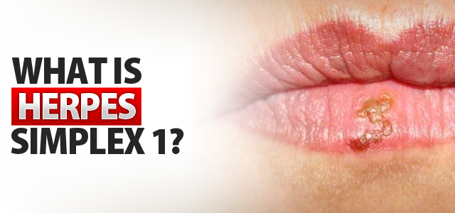 How to treat herpes simplex 1 and 2